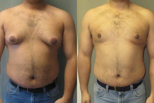 La liposuccion : comment ça marche ?