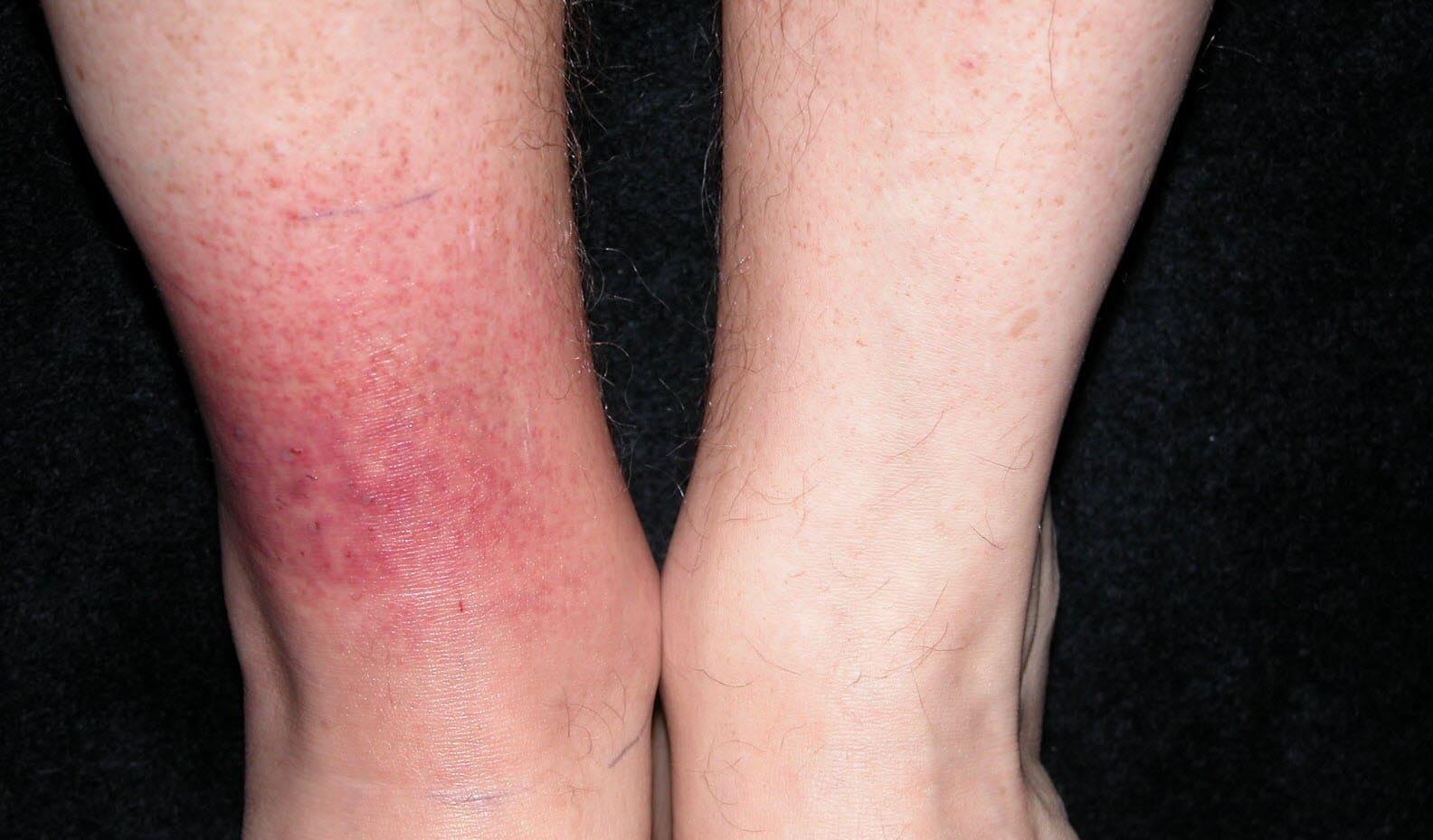 Quel symptôme pour la maladie de Lyme ?