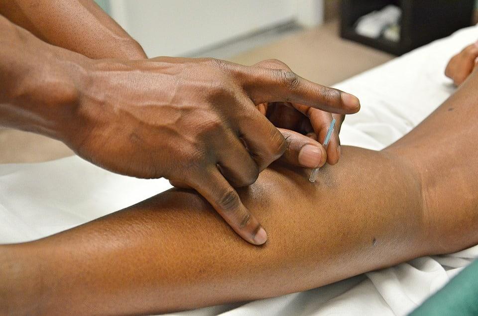 Découvrez les bienfaits de l'acupuncture sur l'organisme